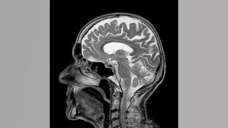 Presentan el primer medicamento que muestra tendencia positiva en pacientes con alzhéimer