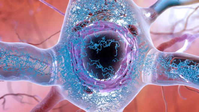 Descubren cómo se inicia el Alzheimer en el cerebro