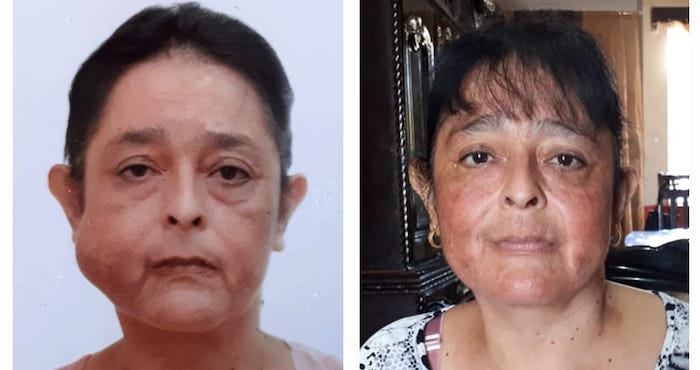 Extirpan con éxito un tumor del rostro de una mujer en Coahuila