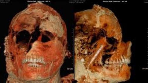 Descubren el secreto de las dentaduras perfectas de los antiguos romanos