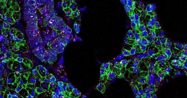 El SARS-CoV-2 infecta las células de la boca; por eso la saliva contagia, dice Nature