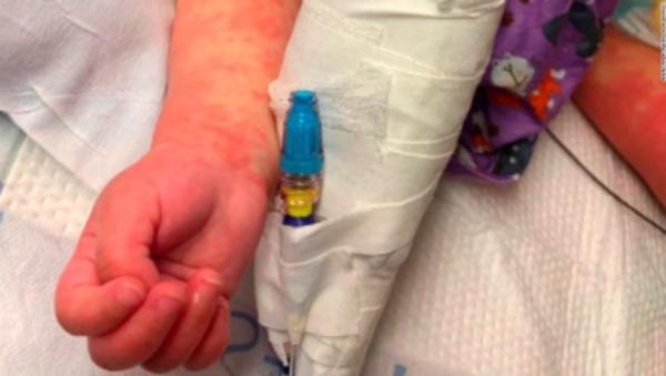 California duplica sus casos del síndrome inflamatorio multisistémico en niños con covid-19